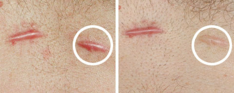 Hypertrophic Scars Scar Treatment Blog Page 2
